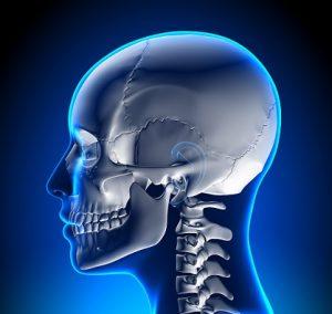 craniosynostosis image