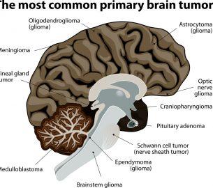 Менингиома — опухоль головного мозга