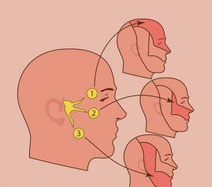 The Treatment of Trigeminal Neuralgia
